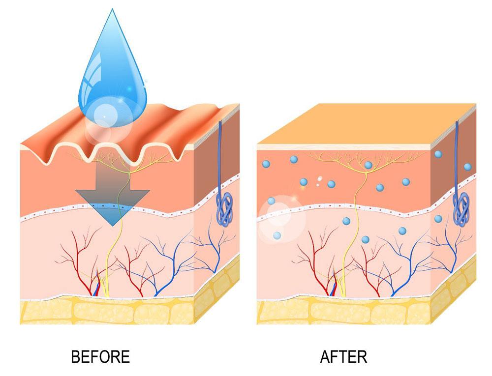 اسید هیالورونیک: اسلحه مخفی ضد پیری در مراقبت از پوست شما